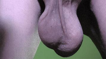 David Noir - Mes testicules - Autoportrait